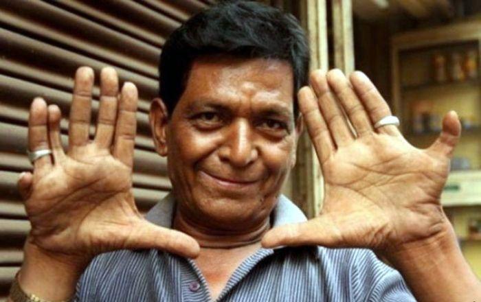 man-thirteen-fingers-hands